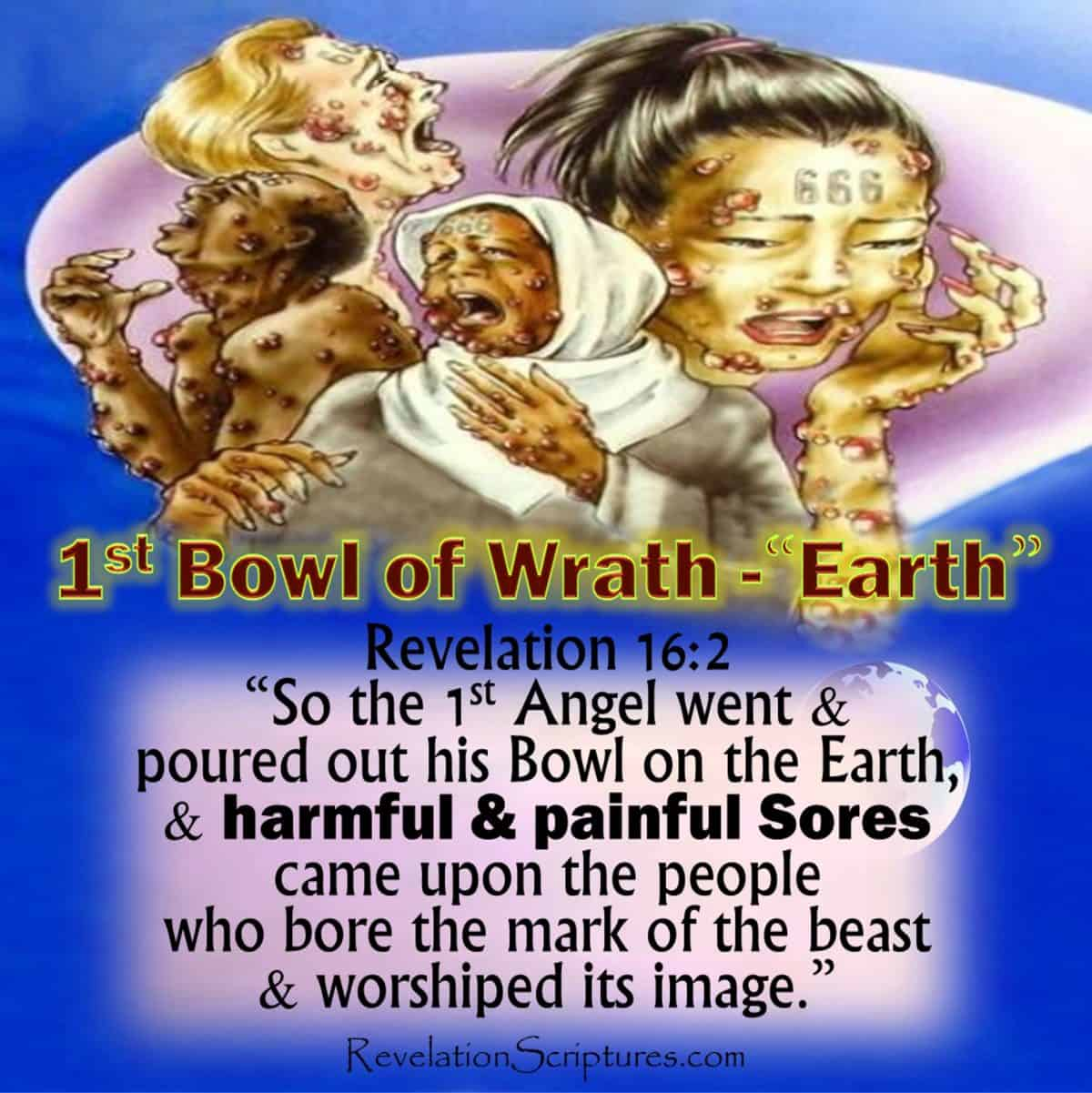 1st Bowl of Wrath,1st Bowl,1st Vial of Wrath,1st Vial,Land,Earth,Sores,painful,harmful,festering,malignant,mark of beast,worship image,image of the beast,666,10 plagues of Egypt,6th Plague of Egypt,Boils,7 Angles,7 last Plagues,7 Final Plagues,Curses,7 Golden Bowls,Day of Wrath,Day of Vengeance,Anger,7 Vials of Wrath,7 Bowls of Wrath,Book of Revelation,Revelation 15,Revelation 16,Revelation Chapter 15,Revelation Chapter 16,Seven Vials of Wrath,7 Vials,7 Bowls,Seven Bowls,wrath,Picture Gallery,Book of Revelation,